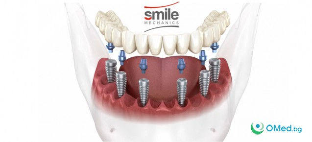 6 импланта + 12 бр. металокерамични корони за (горна или долна) + всички клинични процедури от SM Clinic!