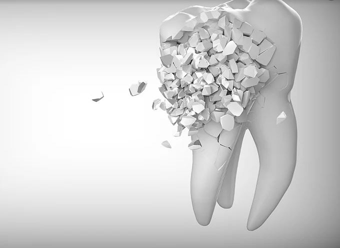 Чувствителност на зъбите - причини и решения